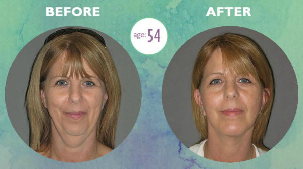 Before & After Facelift Las Vegas