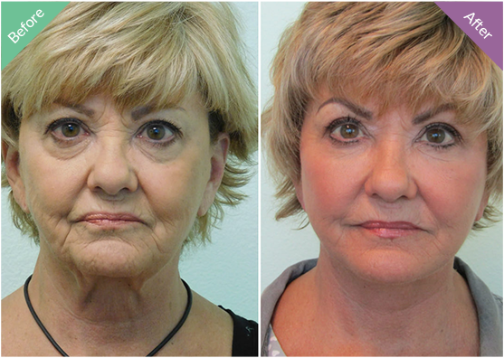 TLC Face/Neck Lift Before & After Las Vegas & Henderson NV