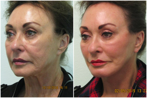 Revision Facelift Las Vegas