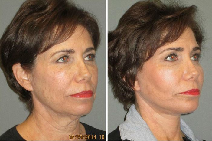 facial fat transfer las vegas