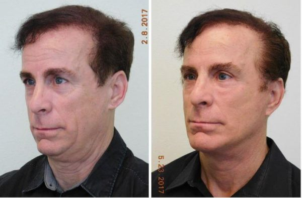 Male Facelift Lase Vegas