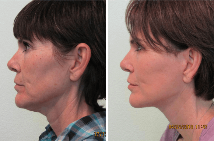 Neck Lift & Lower Facelift Las Vegas