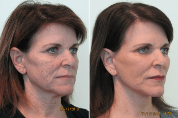Fractional-CO2-Laser-Las-Vegas-