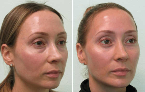 Surgery to remove fat from eyelids