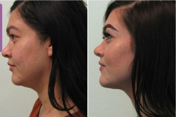 Neck Liposculpting Las Vegas