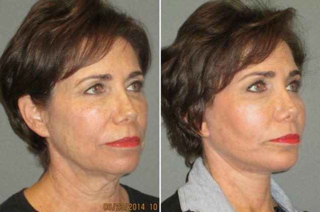 Las Vegas Facial Fat Transfer